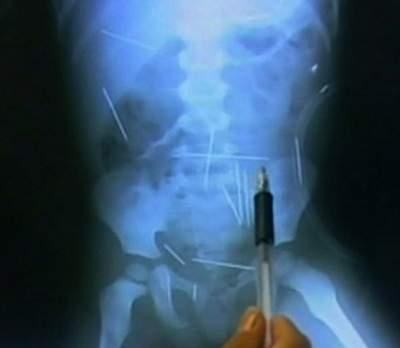50 kim tiêm đã bị mắc kẹt lại trong đầu
