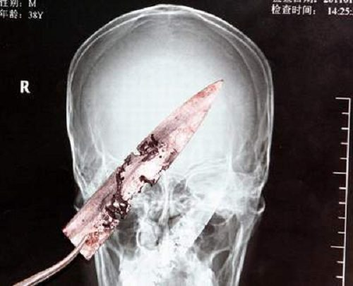 Chiếc dao được các bác sĩ chụp lại