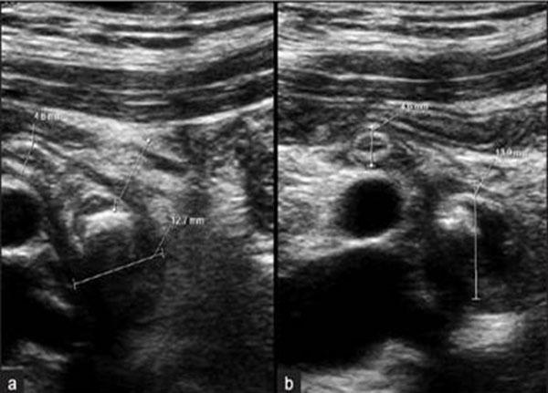 Hình ảnh viêm ruột thừa cấp trên siêu âm