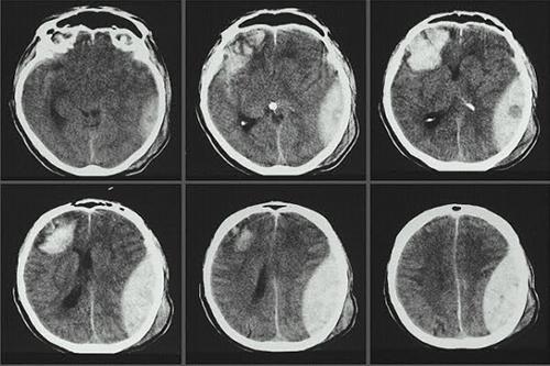 Kỹ thuật chụp cắt lớp vi tính sọ não