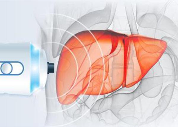 Quy trình thực hiện chẩn đoán xơ gan bằng phương pháp Fibroscan có thể kéo dài 15 phút