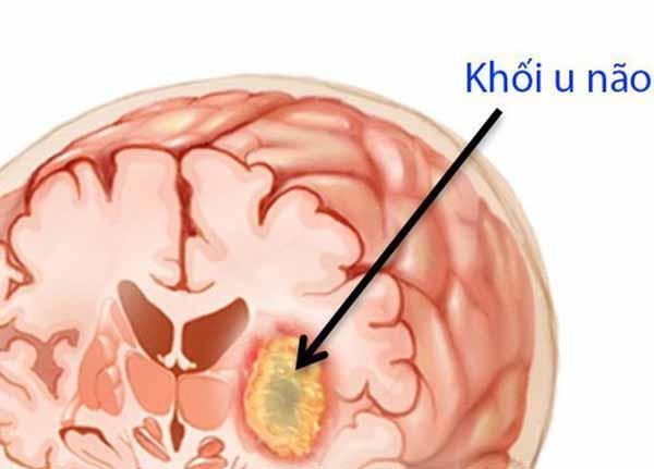 U não là tình trạng các khối u hình thành trong sọ não