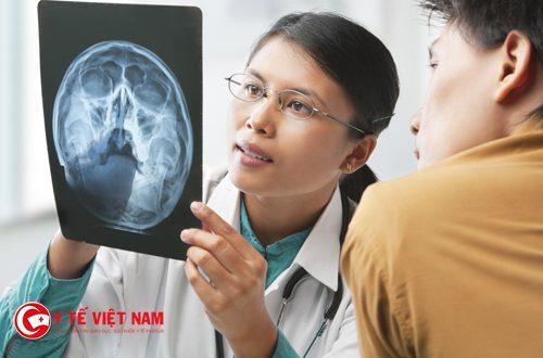 X quang xương sọ mặt được xem là hình ảnh định hướng cho các kỹ thuật Cắt lớp hiện đại