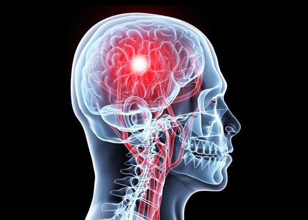 Chấn thương sọ não mức nhẹ là gì?