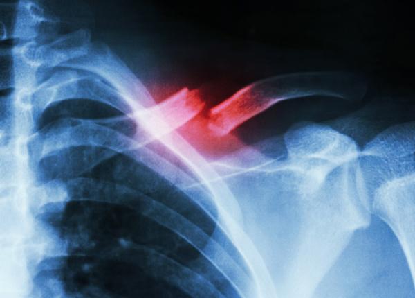 Hình ảnh xương đòn bị gãy trên ảnh X - Quang
