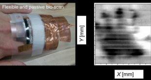 Chẩn đoán hình ảnh tế bào ung thư bằng công nghệ sàng lọc bức xạ terahertz