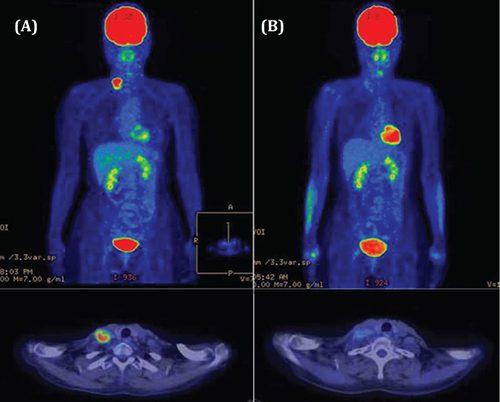 Công nghệ PET/CT là kỹ thuật hiện đại tầm soát những bệnh lý nguy hiểm