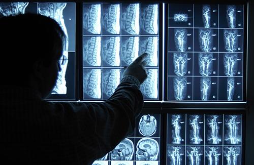 Chẩn đoán hình ảnh kỹ thuật quan trọng trong chẩn đoán lâm sàng.