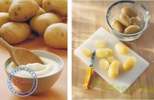 Để trị mụn trứng cá, bạn cũng có thể kết hợp khoai tây với dầu dừa, sữa tươi