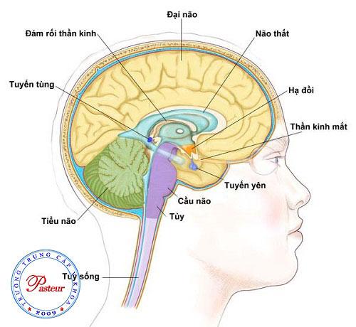 Nguyên nhân gây ra ung thư não