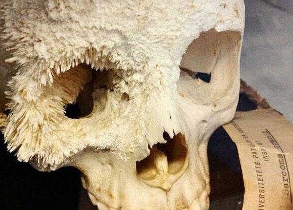 Hình ảnh ung thư xương hộp sọ