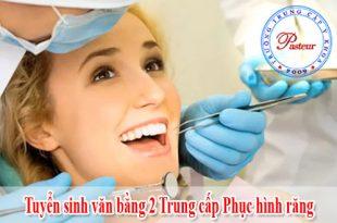 van-bang-2-phuc-hinh-rang