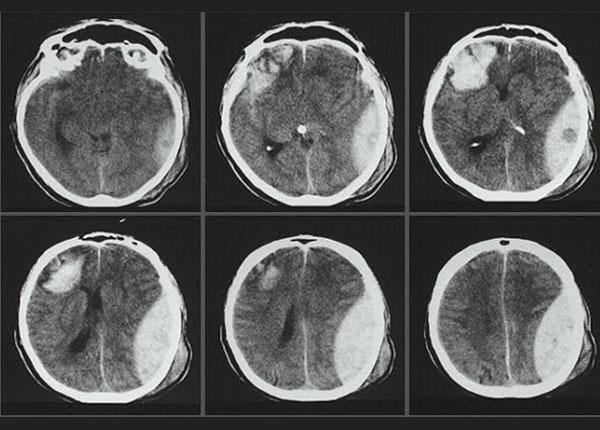 Não người bị chấn thương chụp dựa vào Kỹ thuật hình ảnh y học